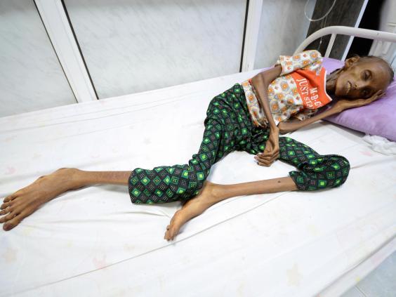 Saida Ahmad Baghili, 18, suffers from severe acute malnutrition