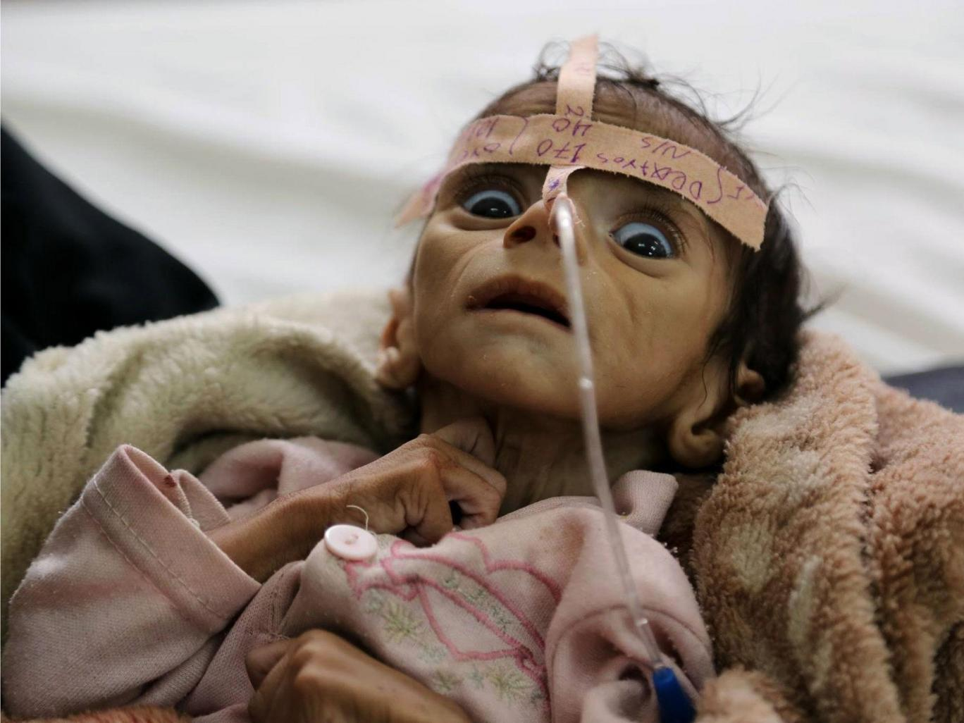 Udai Faisal, an infant suffering from acute malnutrition, at Al-Sabeen Hospital in Sanaa, Yemen, on 22 March, 2016. Udai died on 24 March